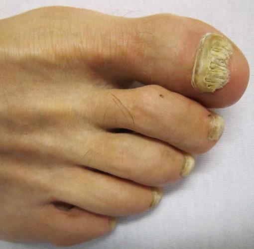 Грибок ногтей от мясникова