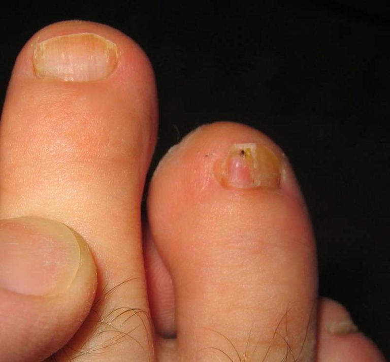 Грибок на втором пальце ноги
