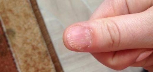 Почему болят ногти?