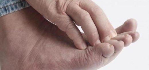 Зуд ступней – причины и лечение