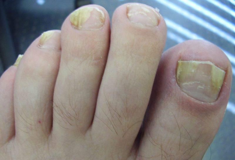 Дерматофития на ногтях ног