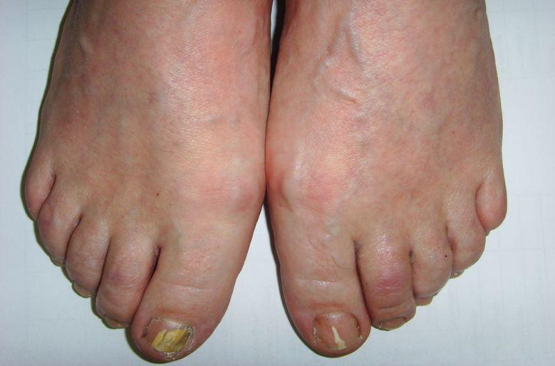 Дерматофиты на ногах