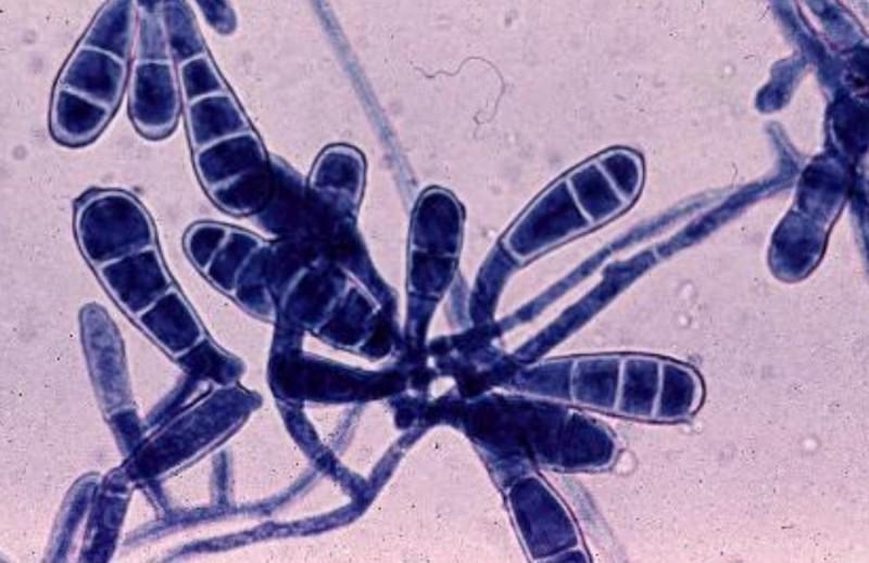 Дерматофиты под микроскопом