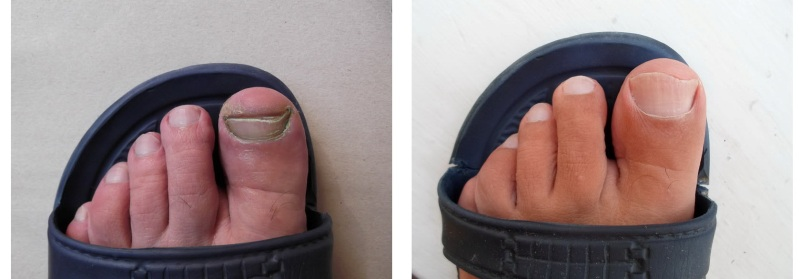 До и после лечения Тинедолом