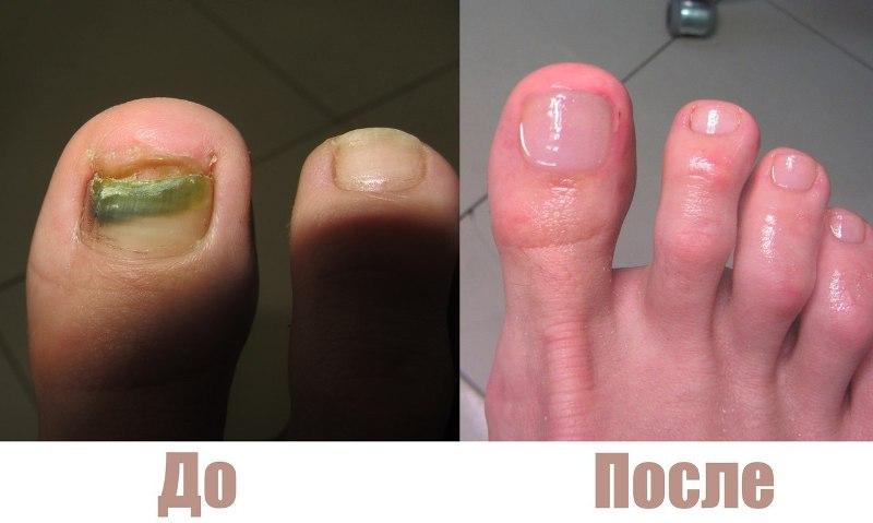 До и после применения Нафтифина