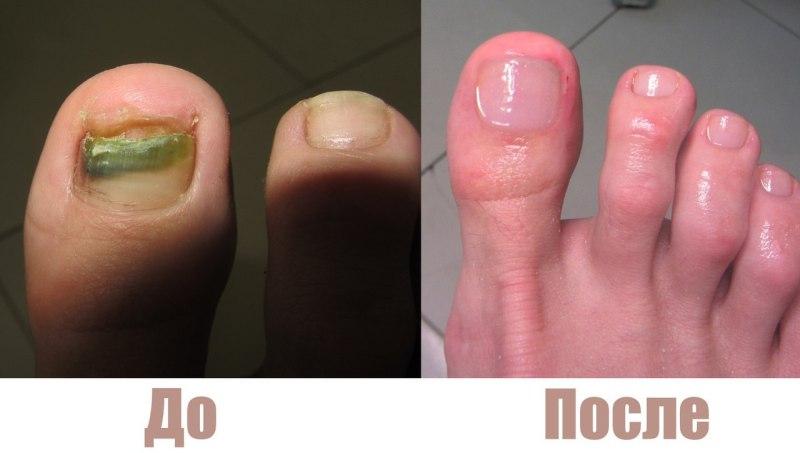 До и После применения Номидола