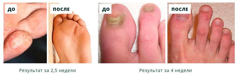 Профилактика грибка стопы и ногтей препараты