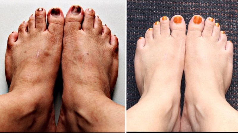 До и после проведения медицинского педикюра