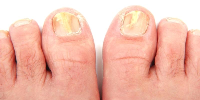 Эпидермофития ногтей