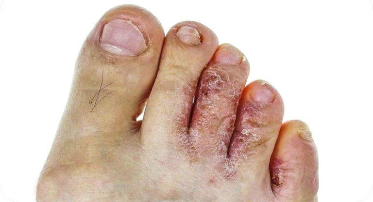 Как проявляется грибок на коже рук и ног
