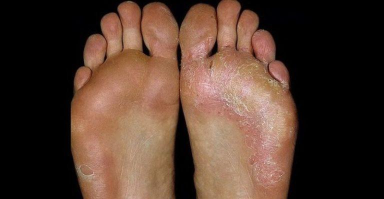 Грибок кожи как лечить народные методы