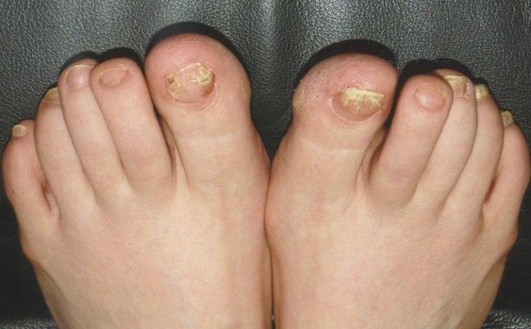 Грибок ногтей стопы симптомы лечение