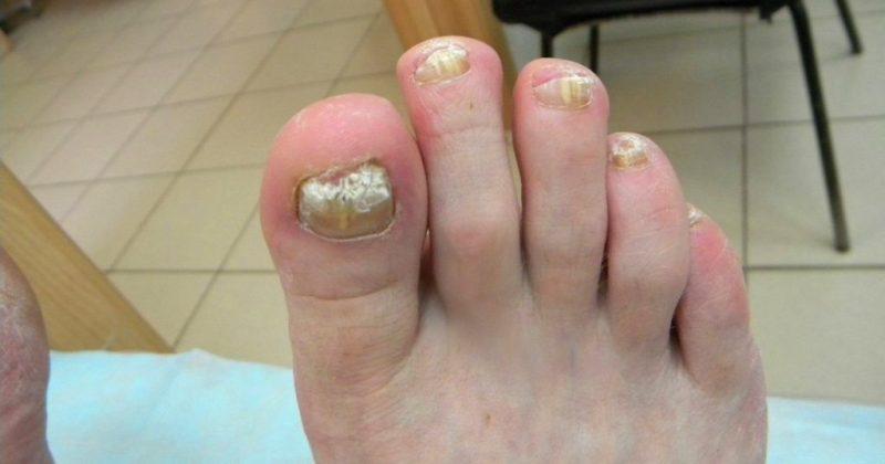 Грибок на ногте пальца стопы лечение
