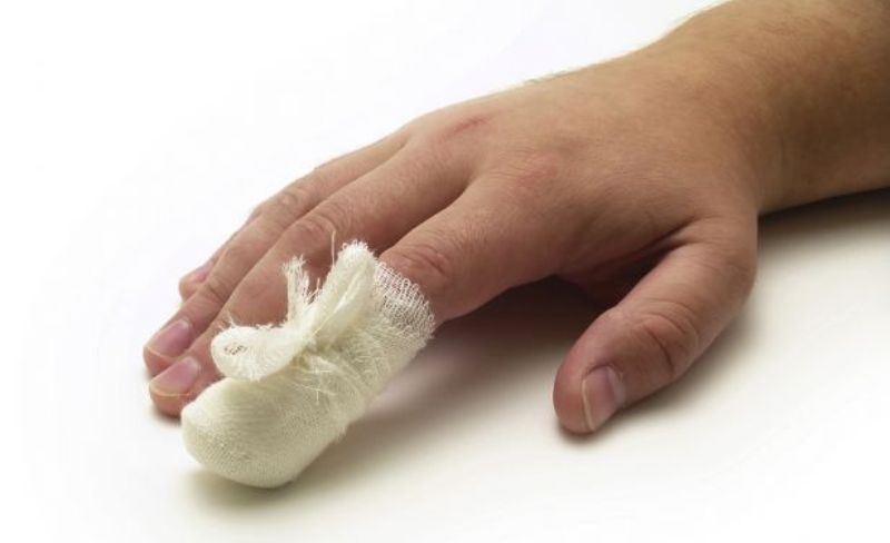 Компресс на ногте