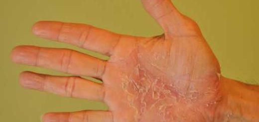 Чем лечить грибок на ладонях