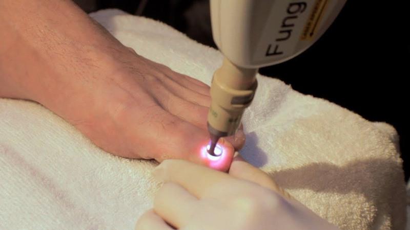 Лечение ногтя лазером