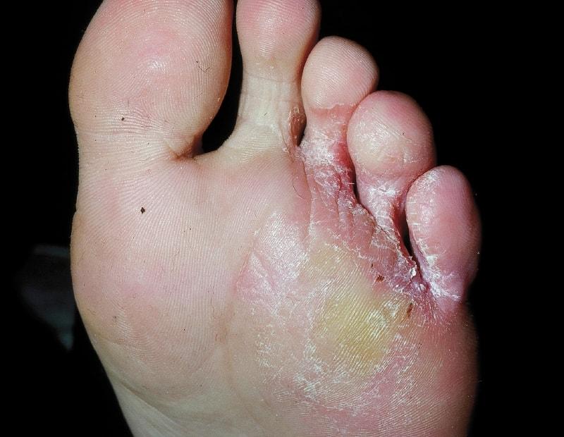 Межпальцевый вид микоза ног