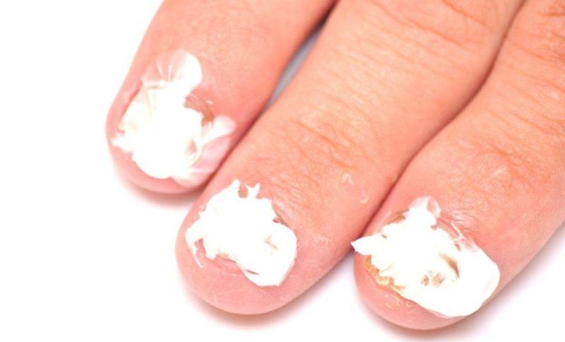 Нанесение Тинедола на ногти