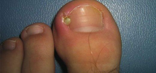 Что делать, если нарывает палец на ноге?