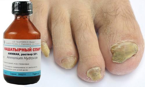 Действенные народные рецепты от грибка на ногтях ног