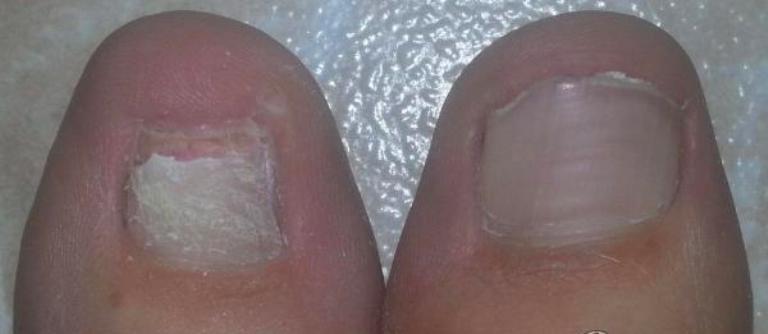 Ногти до и после применения Ногтивита