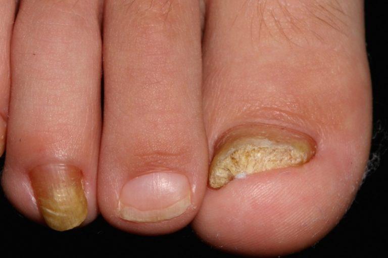 Грибок ногтей стопы ног