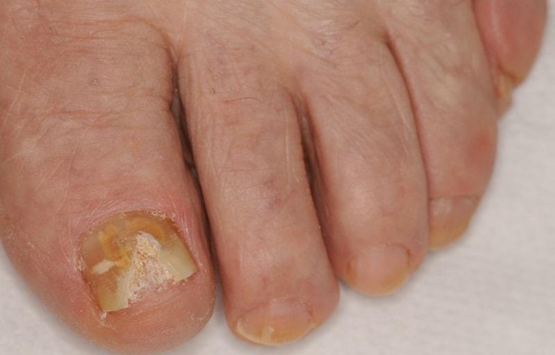 Онихомикоз на ногтях