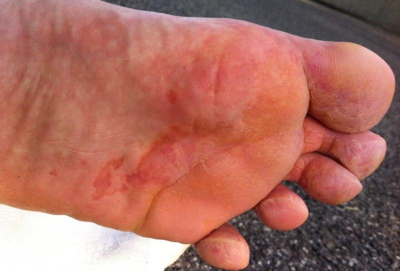 Слезают ногти у ребенка лечение