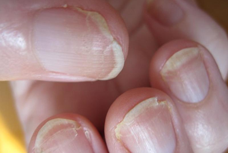 Отслоение ногтевой пластины