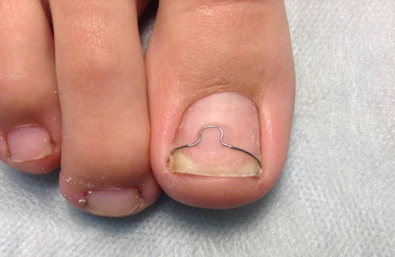 Пластина на ногте