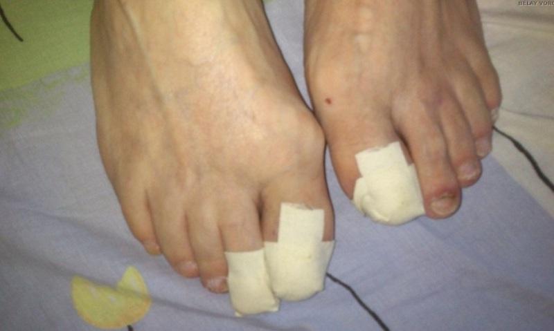 Пластырь на ногтях ног