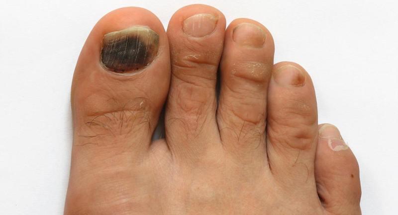 Как лечить чёрный ноготь на ноге: советы, терапия, профилактика