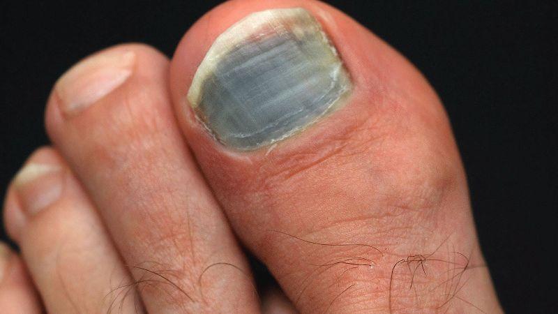 Почерневший ноготь после химиотерапии