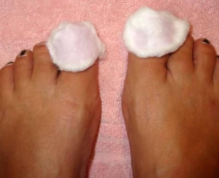 Примочки для ногтей ног