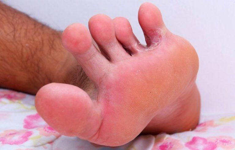 чем залечить чесание между ног определить, как выбрать