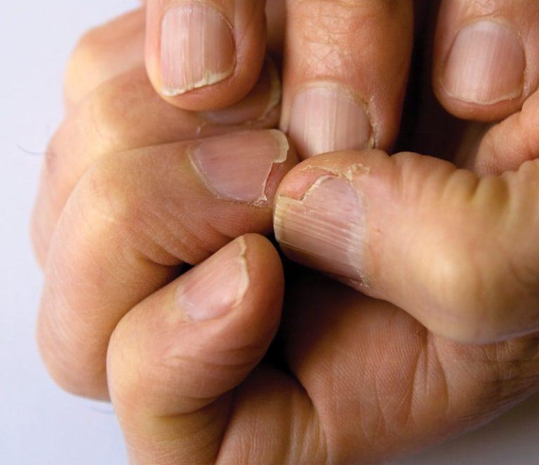 Слоение ногтей на руках лечение и грибок