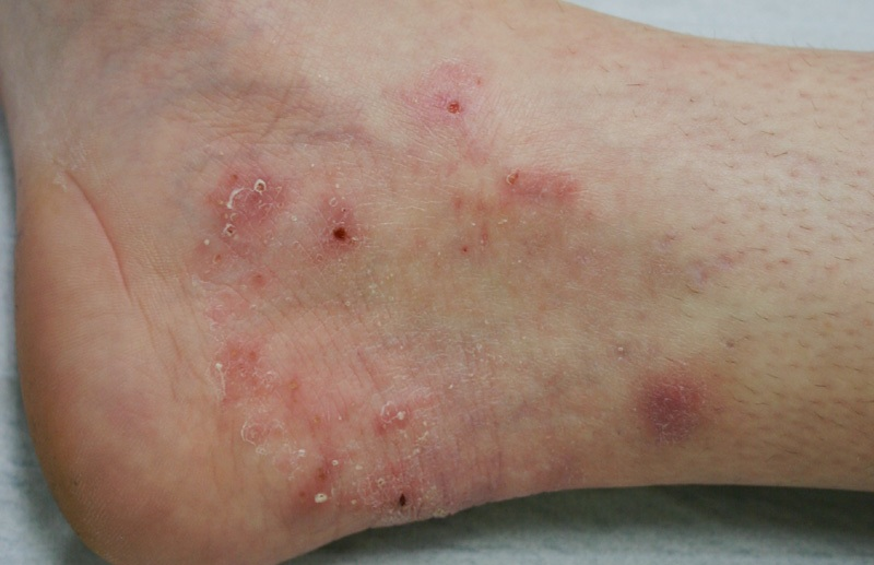 Стёртый вид микоза ног