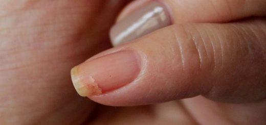 Лечение трещин на ногтях рук