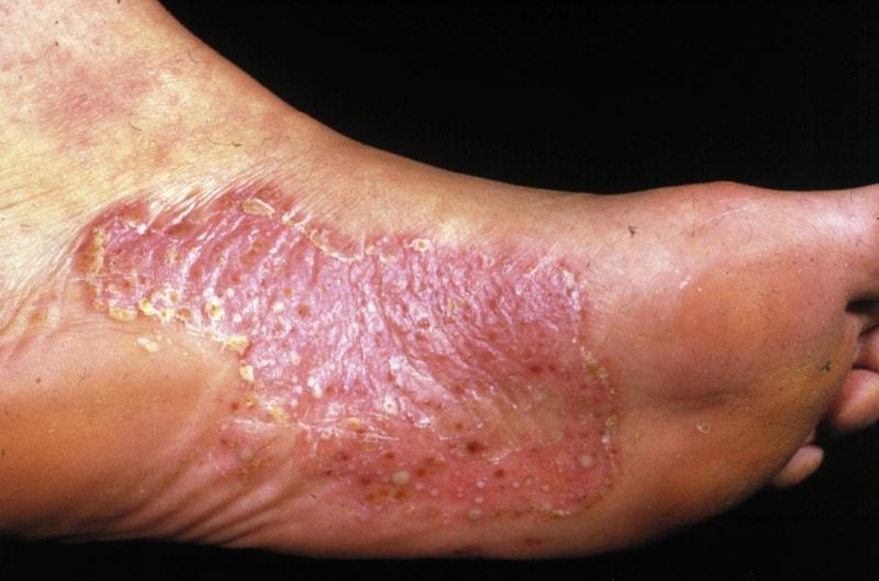 Везикулезный вид микоза ног