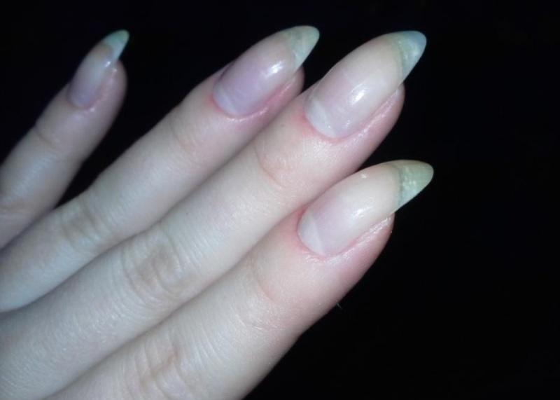 Согнутый ноготь на пальце