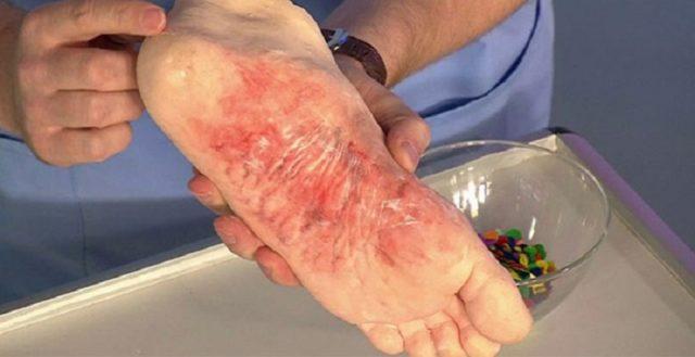 Грибок на ногах лечение препараты цены украина