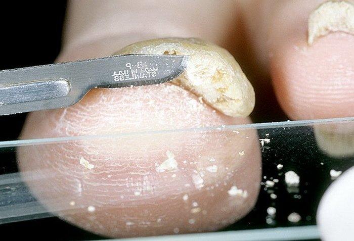 Симптомы дисгидротической формы грибка стоп