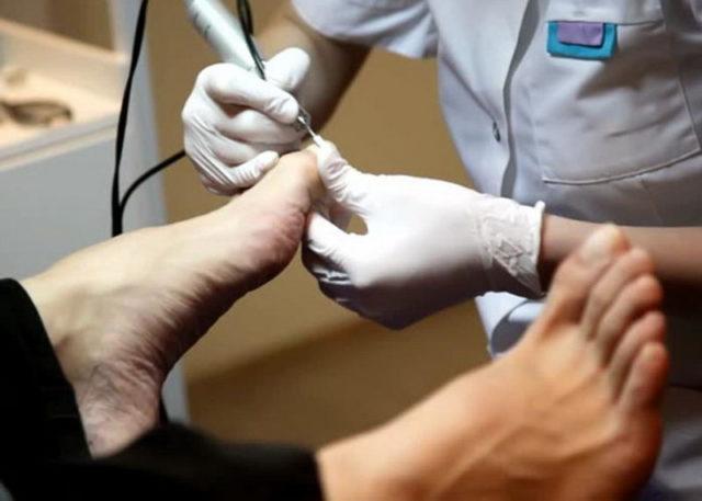 Аппаратное удаление ногтя