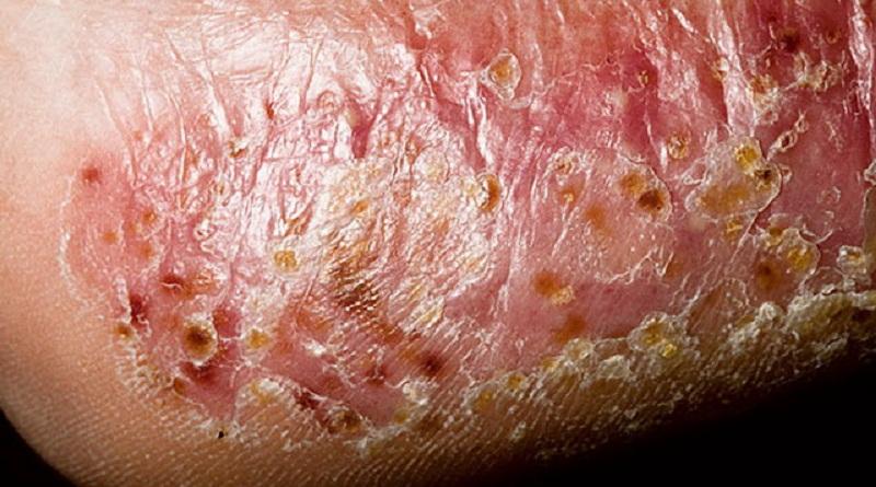 Народные методы борьбы с грибком на коже
