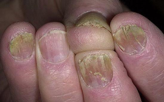 гипертрофический онихомикоз ногтей
