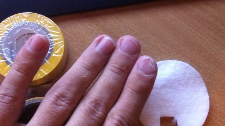 21Как лечить болезни ногтей на руках