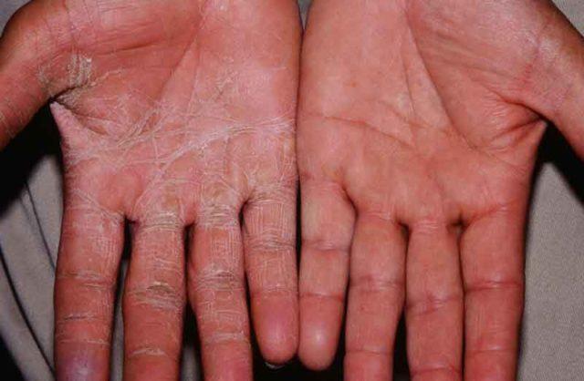Грибок на ладолнях и пальцах