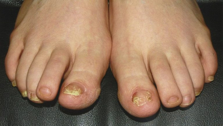 Способы лечения грибка ногтей и кожи ног