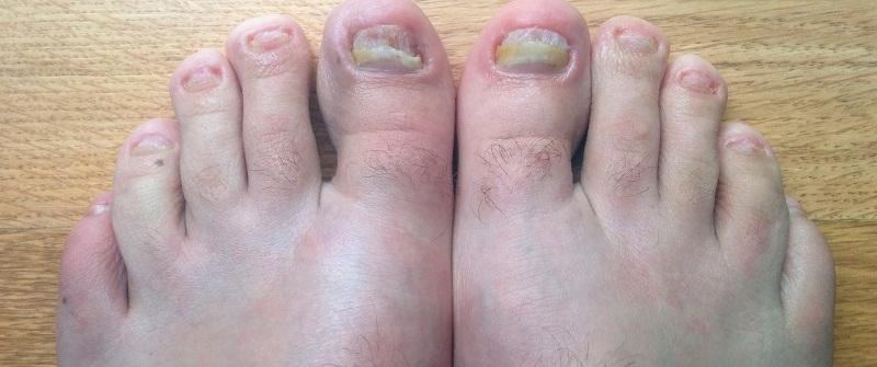 20 спиртовой настойкой прополиса грибок ногтей