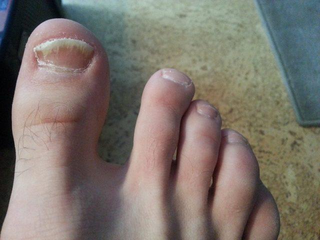 Грибок ногтей на большом пальце